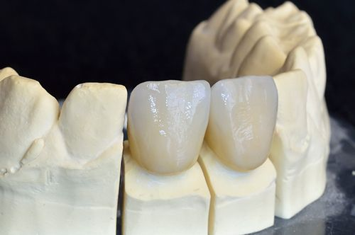 Dental Crowns in Whitpain