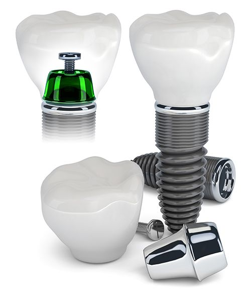 dental implants in plymouth valley