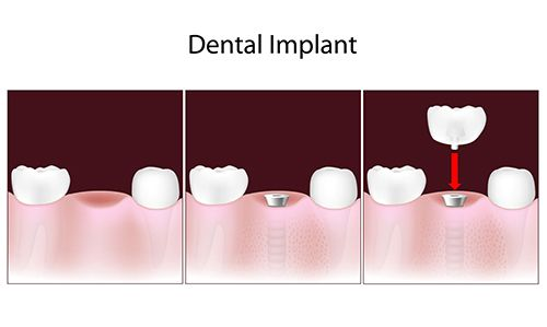 Dental Implants in Whitpain Hills