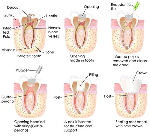 Root Canal in Whitpain Hills